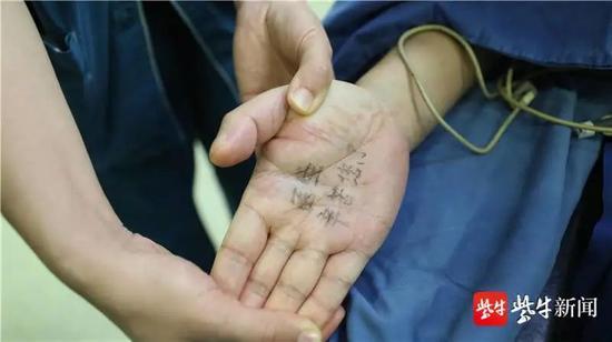 """病人的手心里写着:""""医生,辛苦您了"""" 张鑫 摄"""
