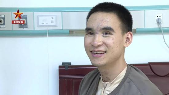 △杜富国在陆军军医大学西南医院做康复治疗