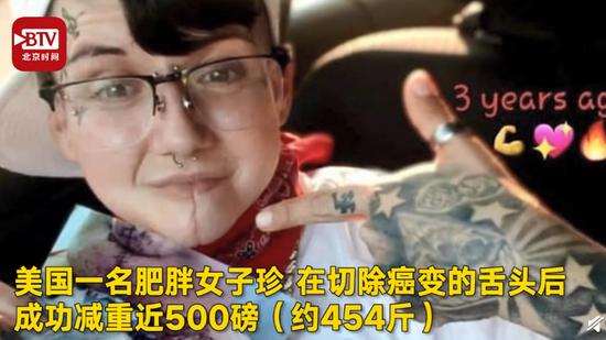 女子感谢自己患口腔癌?切除95%舌头后暴瘦超450斤