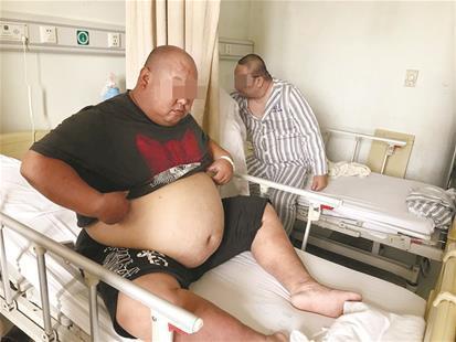 麻城男子手术缩胃50天减重86斤 男性腰围超90厘米就要减肥