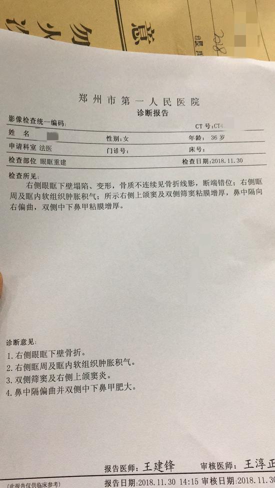 今年11月29日,润妍遭到冀学家暴,致眼眶骨折。