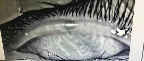 小辛的睑板腺检查图