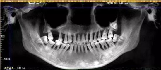 牙片中清亮可见幼萌的上口牙已摇摇欲坠