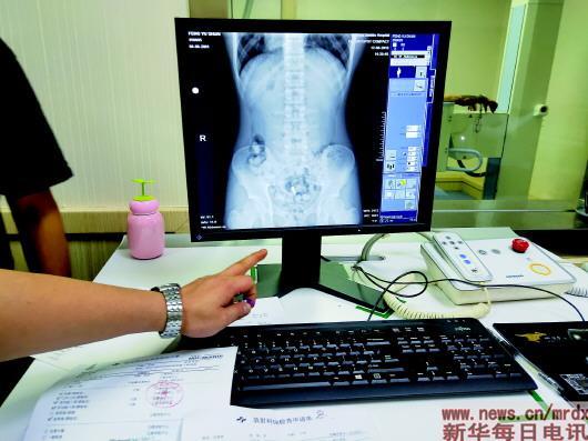 ▲X光机透视下的带毒人腹部。南京铁路公安处供图
