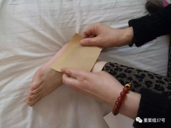 ▲2019年1月21日,布病患者正在病房里给自己贴药膏,她得了布病关节炎,脚踝经常疼痛。新京报记者 吴靖 摄