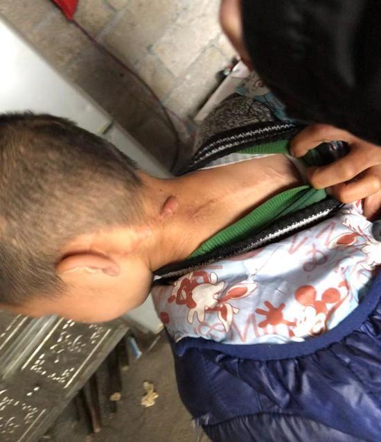 2015年9月30日,覃荣(化名)的儿子被覃志钢用柴刀砍伤,背上留下一道长长的伤疤。新京报记者王翀鹏程摄