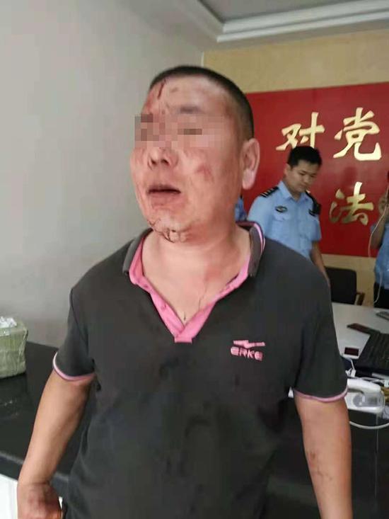 巩老师在本身的门店内被多名城管打伤。当事人供图