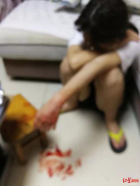 ↑小燕曾试图割腕自杀