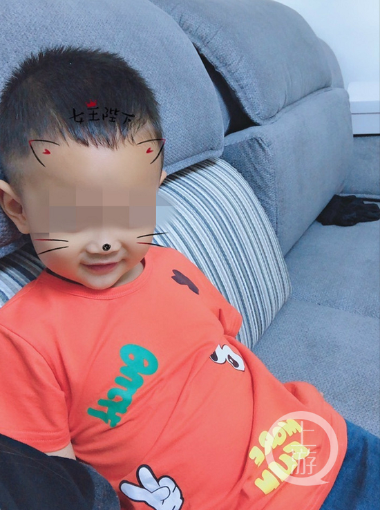 ▲两岁男童仔仔受伤前照片。受访者供图