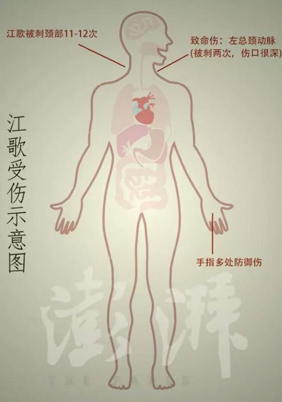 江歌受伤示意图 (据检方描述) 澎湃新闻记者 石轶君 制图