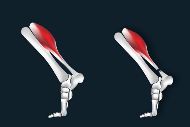 跑步时小腿跟腱疼痛怎么办?几个方法教你解决困境