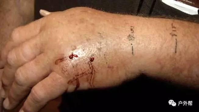 毒蛇咬伤预防和处理 野外活动必学的事!
