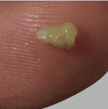 咽部有異物感伴有明顯口臭 原是扁桃體結石作祟圖片