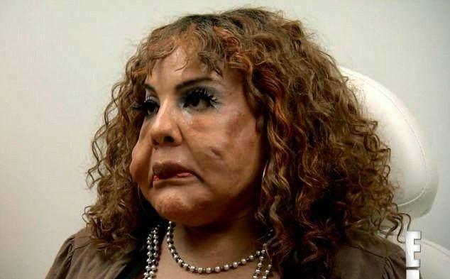 整容鼻子失败_韩国女星整容失败,鼻子像塑料做的,还能用鼻孔呼吸吗?