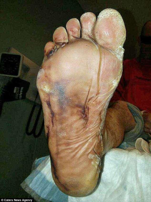 起初是指甲很癢,后來腳底和手掌開始發癢,后來腳變得很痛不敢走路.圖片