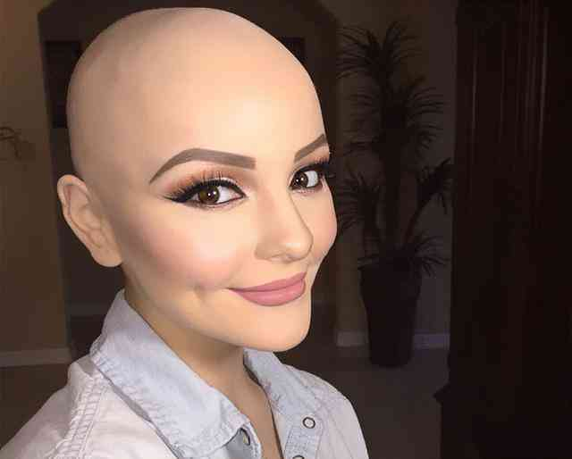 感动!少女身患癌症成光头,摄影师帮她实现公主梦!