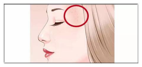 斑的位置固)�_脸上长斑 不同位置预示不一样的健康隐患