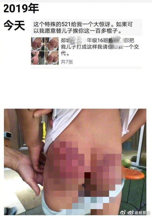 一年級學生屁股被打上百棍 涉事教師被教育局開除