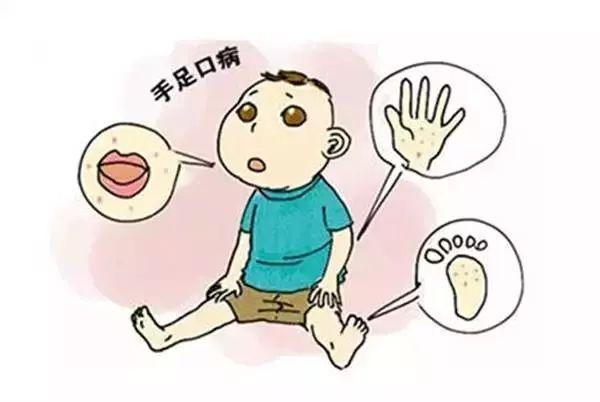 手足口病进入感染高发季 普通型和新型手足口有啥区别?