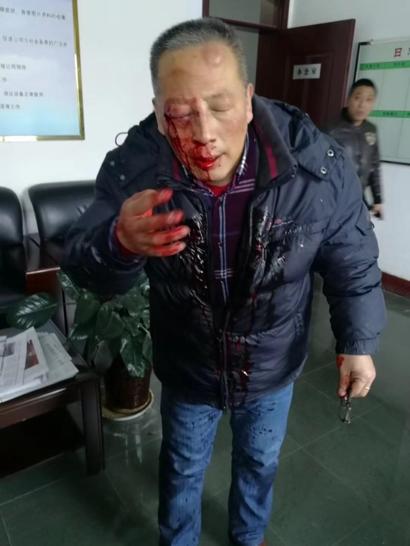 2018年1月4日,上官学兵被人行使棒球棒打伤头部。受访者供图