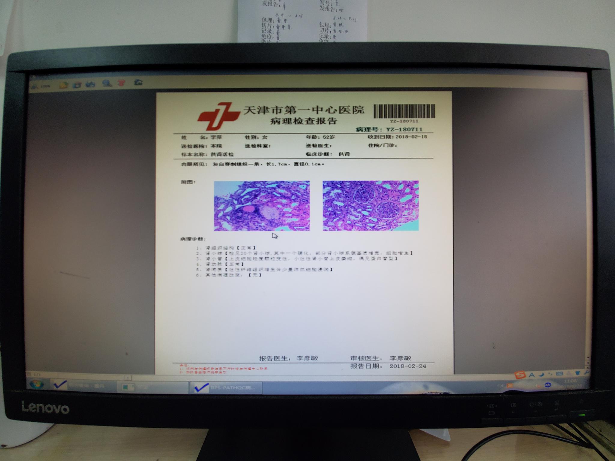 天津市第一中心医院查到的李萍肾脏的病理检查报告。 新京报记者 李云蝶 摄