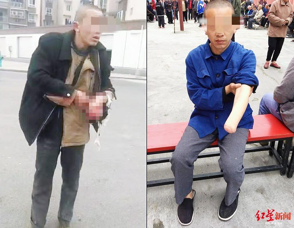 杨某某被咬伤(左图)和截肢后(右图)