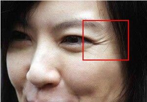 40岁眼部保养刻不容缓,抓住这几个小细节,让你摆脱鱼尾纹