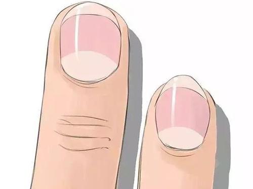 """""""五指""""通""""五脏"""" 按摩对""""手指""""这些部位,养生防病益健康"""