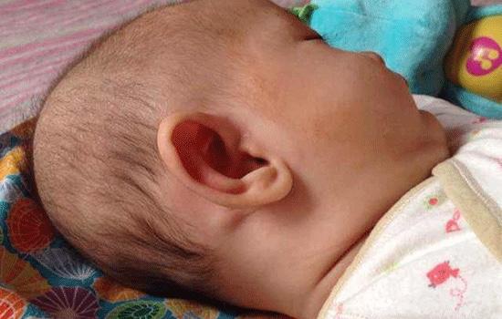 宝宝头部枕后有小包是怎么回事