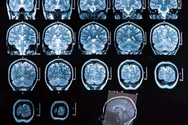 老年痴呆症有药可治?FDA批准的新药,为何引起业界人士的反对?
