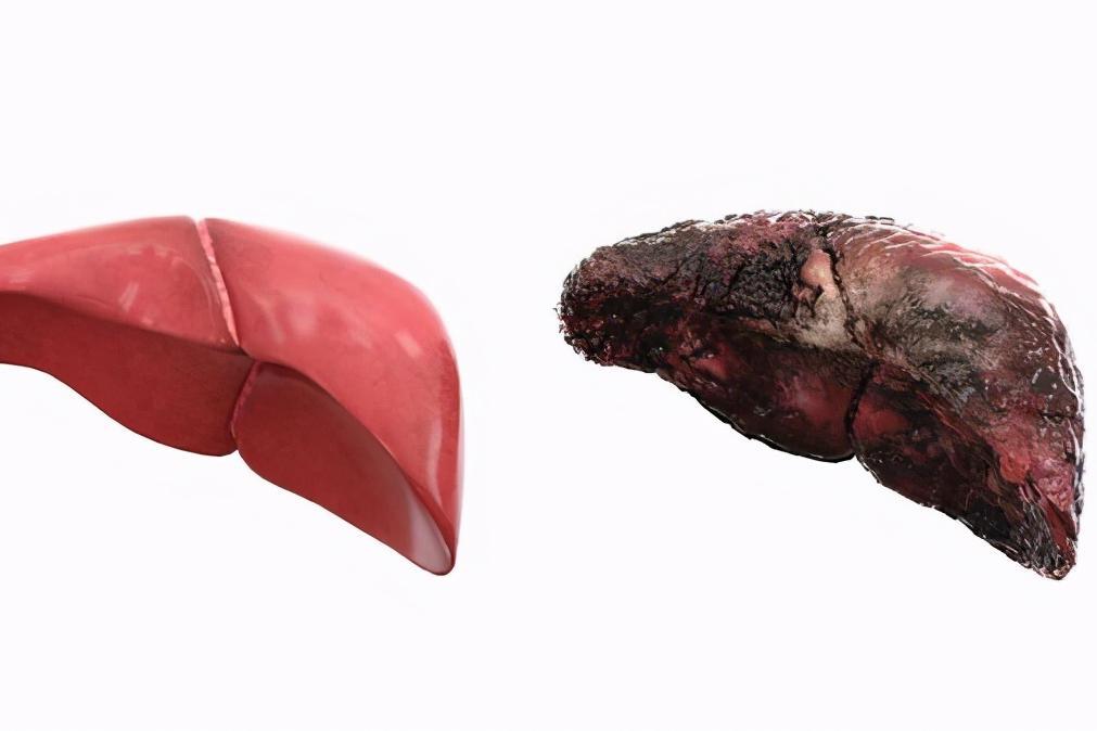 """肝癌并非毫无征兆,身体若有""""2黑2臭"""",医生建议你早点检查肝脏"""