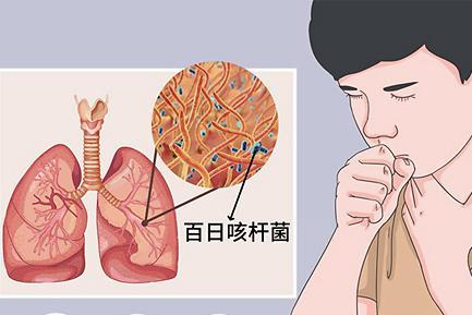 """【科普知识】""""百日咳""""的传播性有多强,你知道吗?"""