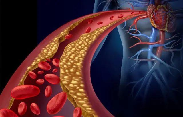 研究找到血液中坏胆固醇净化机制