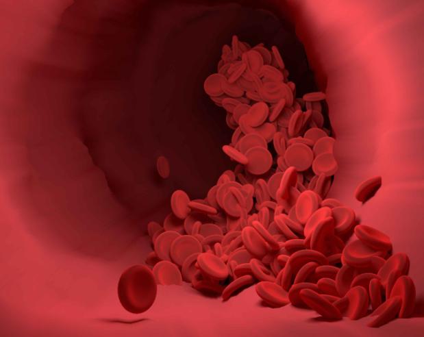 血栓近身的5个信号,若占两个以上,建议你尽快去检查,别拖!