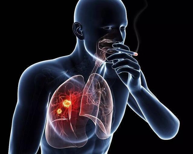 """若发现身体3处""""凸起""""了,或许是肺在暗示尽早戒烟"""