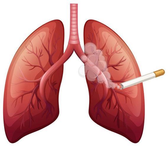 """肺部的""""净化器""""终于被找到了,隔三差五吃一次,或给肺部洗洗澡"""