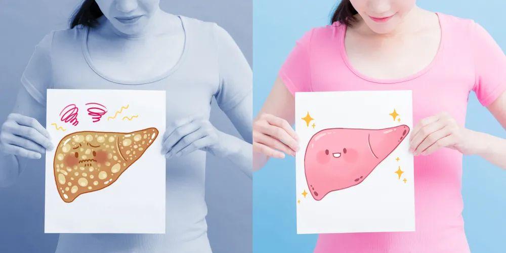 体检查出脂肪肝,该怎么办?