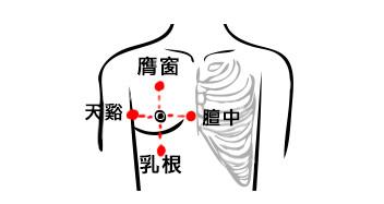 艾灸乳腺结节有效果吗?艾灸乳腺增生应该灸哪个位置?