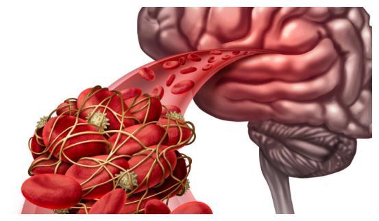 血脂高的人要多吃素食?未必!少碰3种素食,反而有利于控好血脂