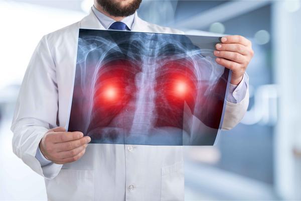 肺癌查出就是晚期?医生忠告:5个习惯趁早改,肺会感激你