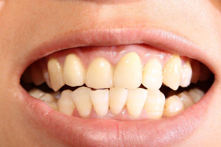 牙不好,疾病全身跑:清代名医一个方子,补肾又固齿,一举两得