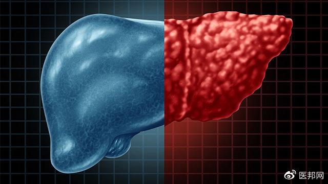 为什么现代人这么容易脂肪肝?主要原因有3个,针对性预防这样做