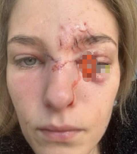 知名女星被宠物狗咬伤,脸部破相眼睛险失明!伤口曝光触目惊心
