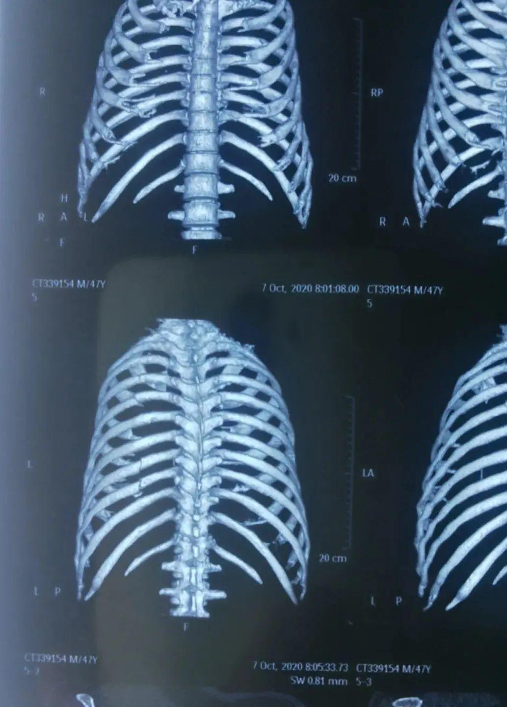 後遺症 肋骨 骨折