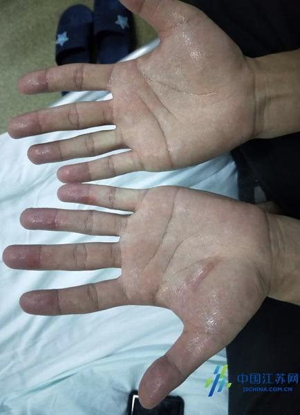 鼓楼医院专家解读:多汗症确实是病,疼痛科治疗效果好