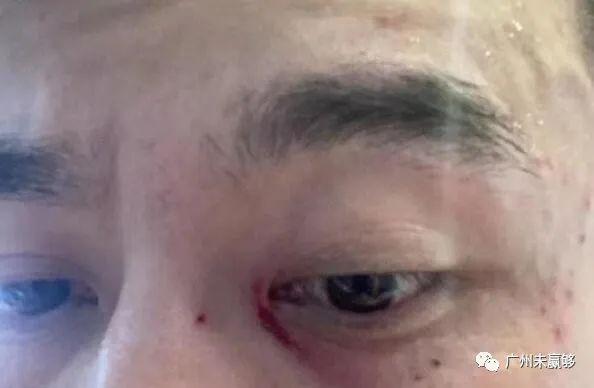 冤?曹赟定晒眼部受伤照片 遭对手挑衅报复染红