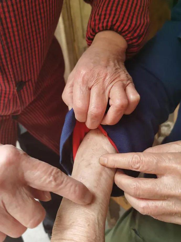 龙夏孜2015年的右手被蒋某银打骨折,至今钢板不能取出。