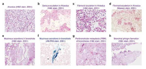 瑞金医院王朝夫团队发布严重型新冠肺炎病因研究重大成果,揭示炎症因子风暴和肺泡巨噬细胞激活关键机制