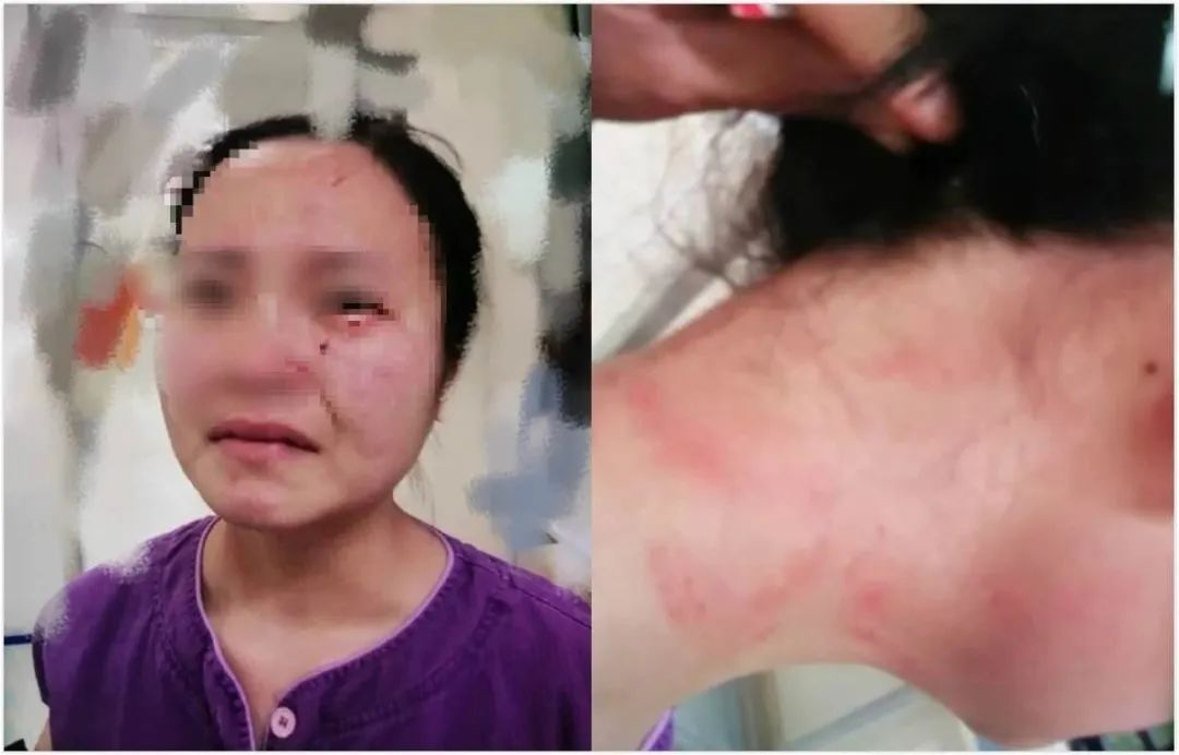 被打护士图片,图源微博