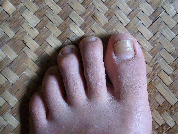 指甲变色、容易脱落怎么办?要当心灰指甲,但街边偏方不要相信